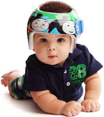 baby wearing cranial remodeling helmet